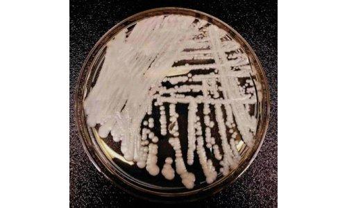 超级真菌 耳念珠菌