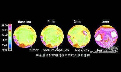 肿瘤细胞的结构遭到破坏