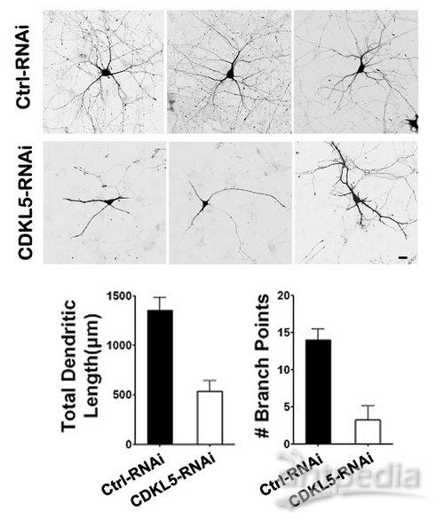 细胞内cdkl5蛋白的表达抑制了培养皮层神经元的树突