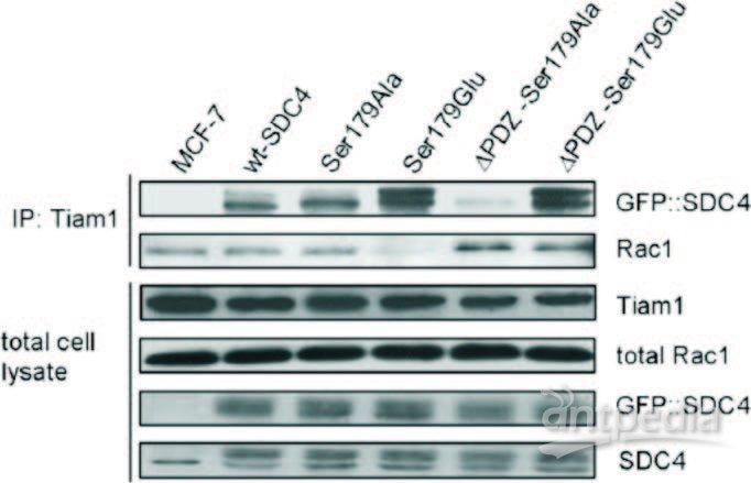 将下机数据进行数据库检索,获取产物中蛋白信息.